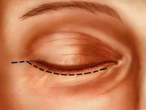 Cirurgias - Blefaroplastia inferior